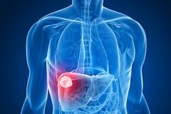 Estendere il trattamento eradicante a tutti i soggetti affetti da Epatite C