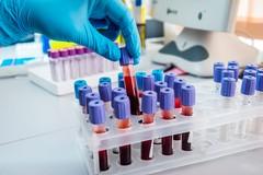 Lotta ai tumori, test Hpv presto anche in Puglia