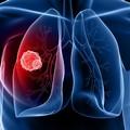 In Puglia ogni anno 2.000 nuovi casi di tumore del polmone